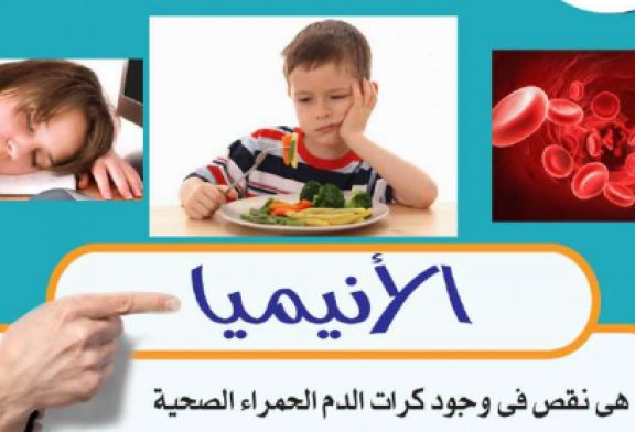 الأنيميا Anaemia or Anemia